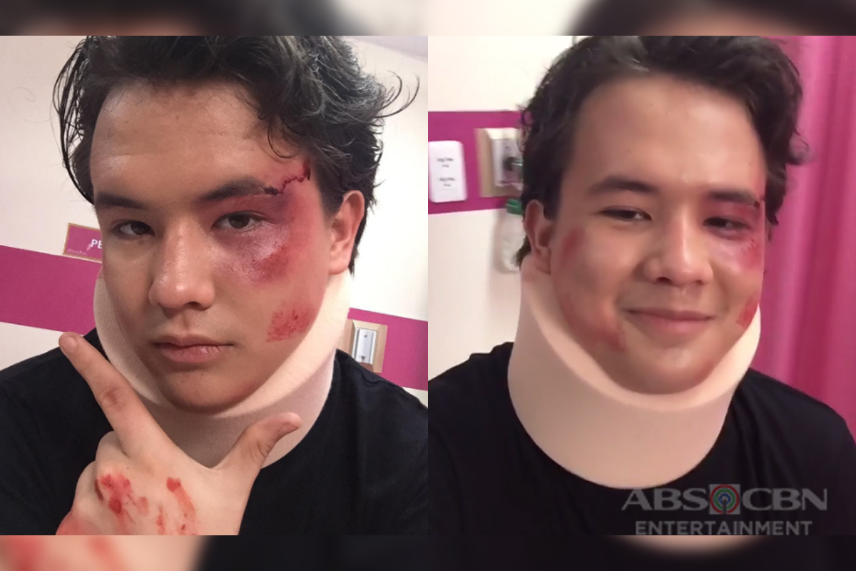 The real story behind Lucas' accident in ALTL